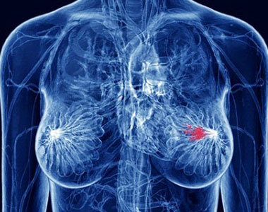 Genistein And Breast Cancer Tumors